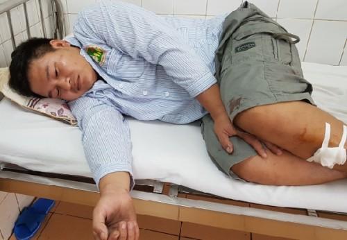 Gia Lai: Khởi tố vụ án thanh niên 9x chém trọng thương công an